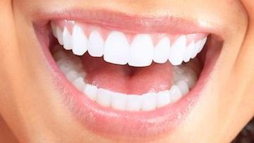 professional teeth whitening | prosper tx